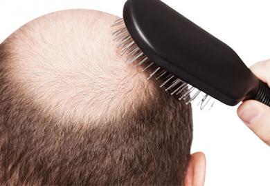 Saç Ekiminde Uygulanan Teknikler Önemli mi?